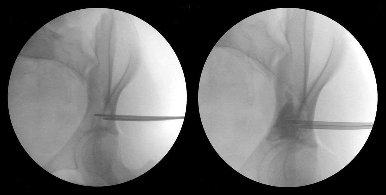 Aspiration of unicameral bone cyst