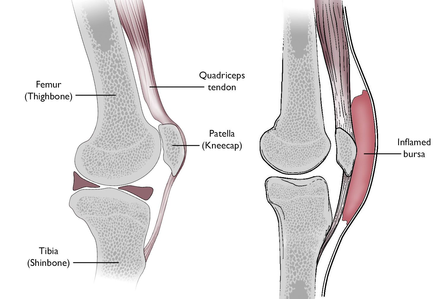 Normal knee anatomy including the bursa involved in prepatellar bursitis
