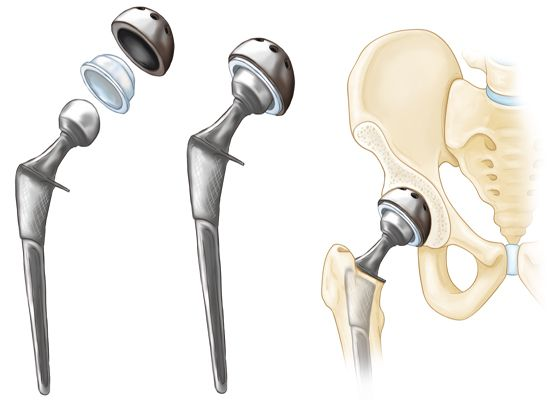 hip replacement components