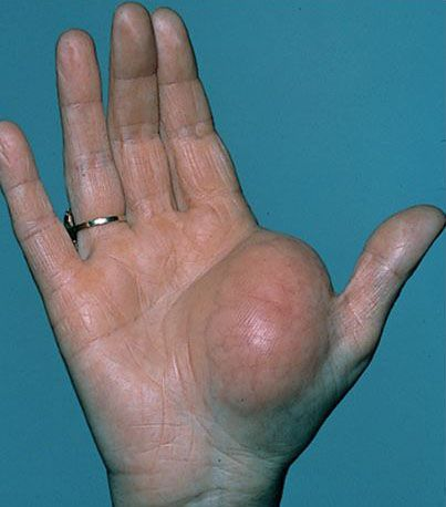 Photo of lipoma in hand