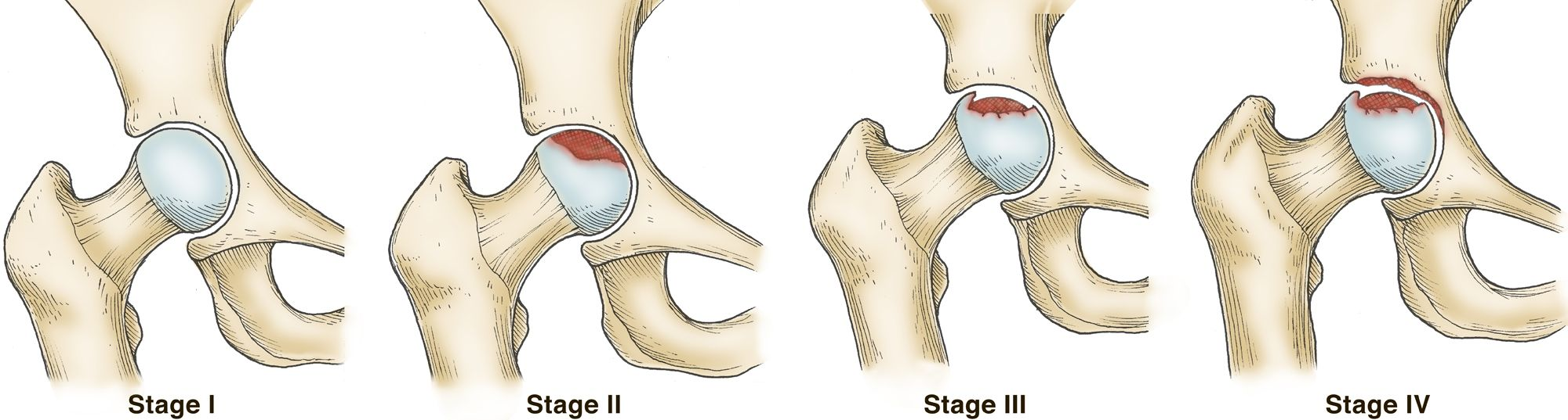 Stages of osteonecrosis of the hip