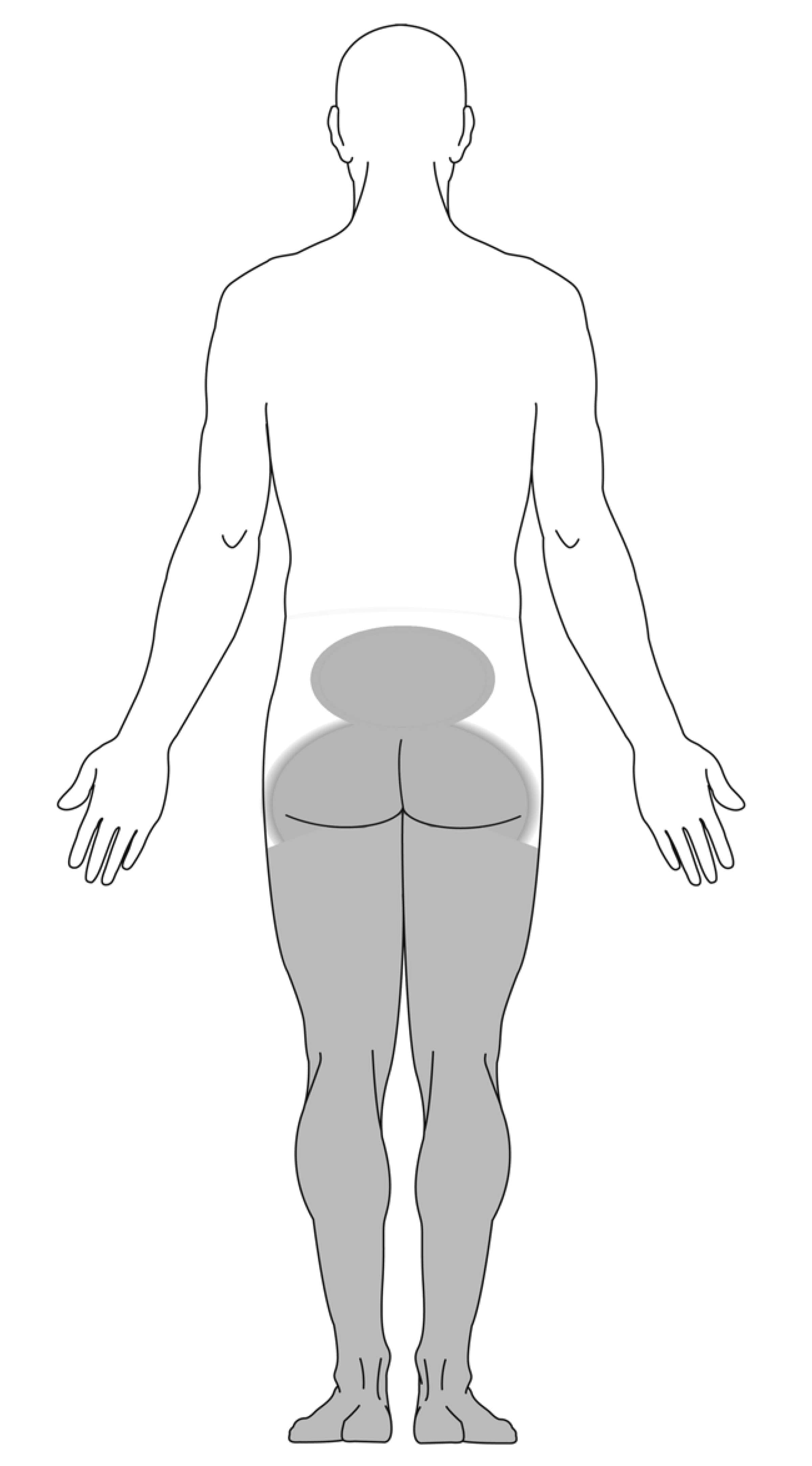 pain diagram for cauda equina syndrome