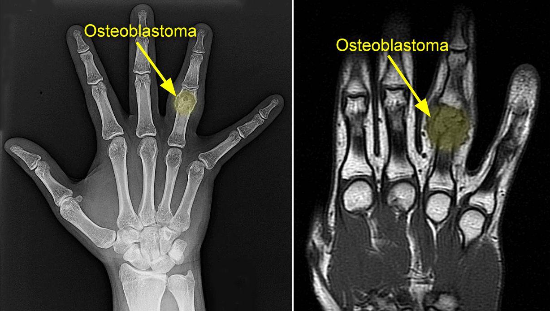 Osteoblastoma Orthoinfo Aaos