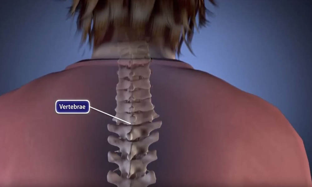 Spinal Fusion - OrthoInfo - AAOS