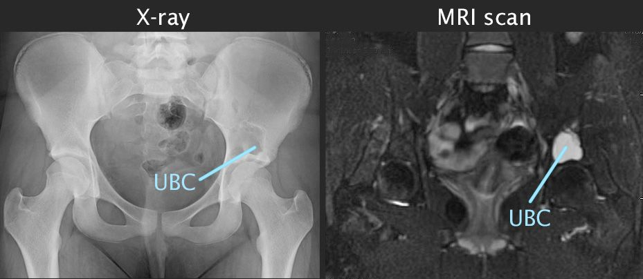 X-ray and MRI scan of unicameral bone cyst