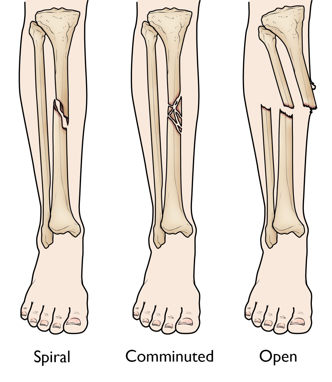 Tibia Shinbone Shaft Fractures Orthoinfo Aaos