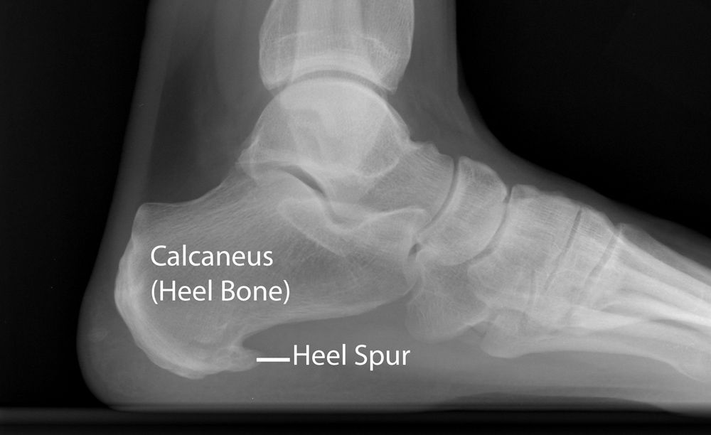 X-ray of heel spur