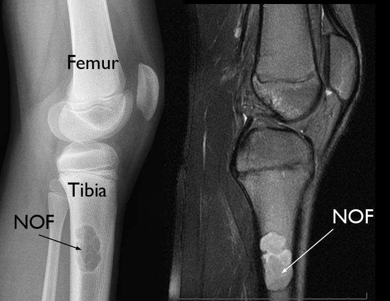Nonossifying Fibroma - OrthoInfo - AAOS