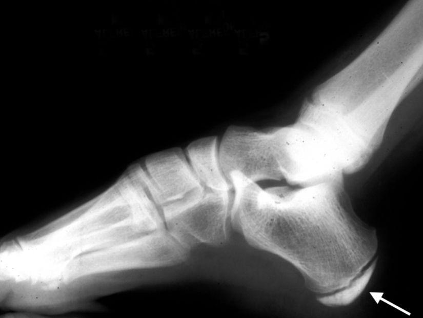 Sever's Disease (Heel Pain) - OrthoInfo - AAOS
