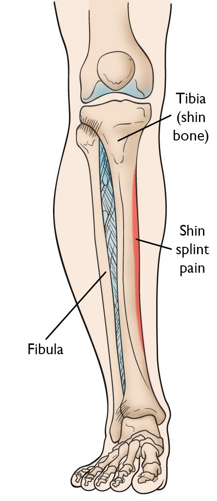 Shin Splints Orthoinfo Aaos