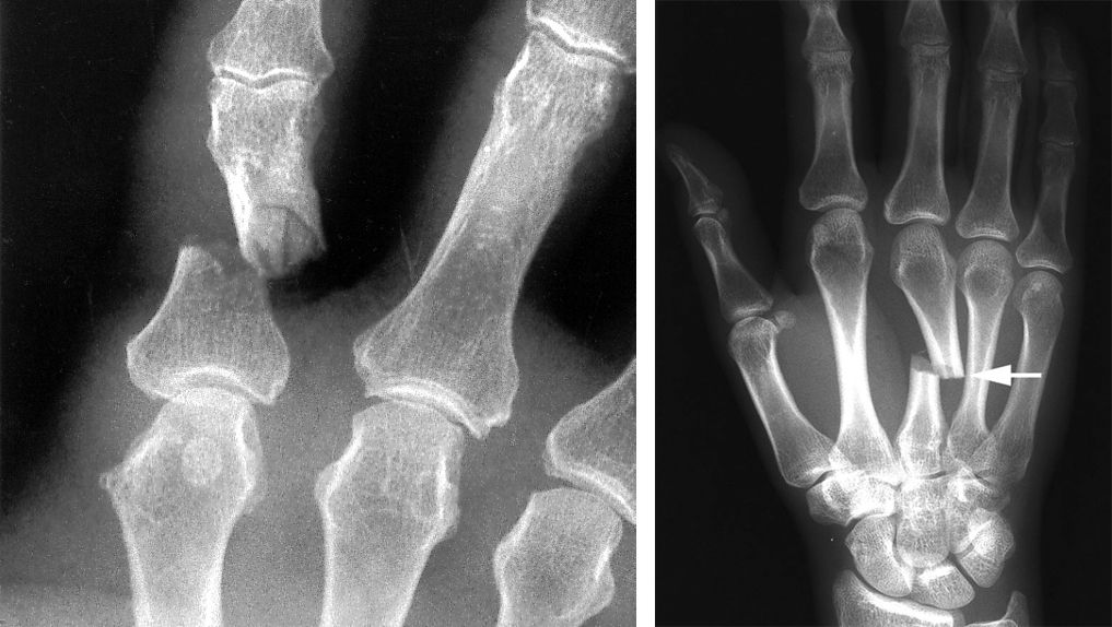 Phalanx fracture and metacarpal fracture