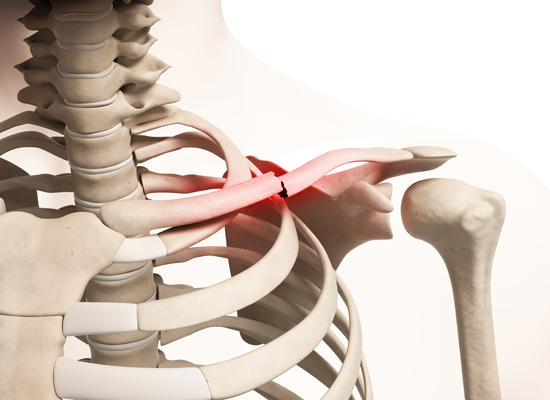 Tibia (Shinbone) Shaft Fractures - OrthoInfo - AAOS