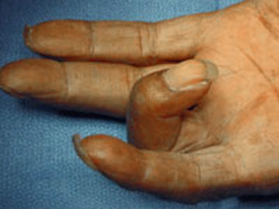 Trigger Finger - Trigger Thumb - OrthoInfo - AAOS