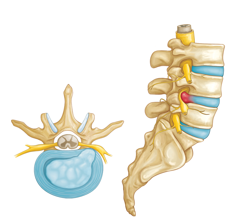 Illustration of a herniated disk