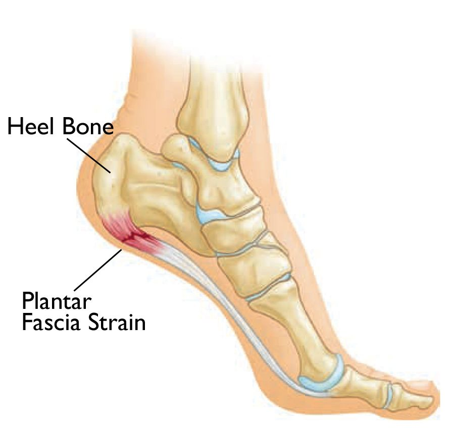 Damage to plantar fascia