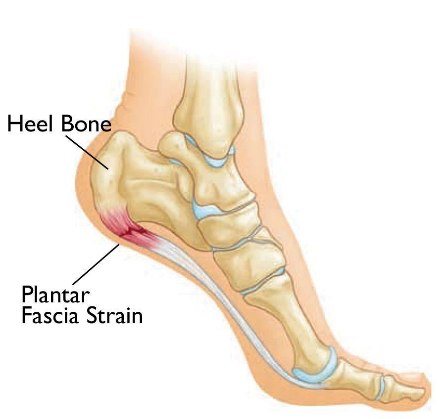 Heel Pain Plantar Fasciitis