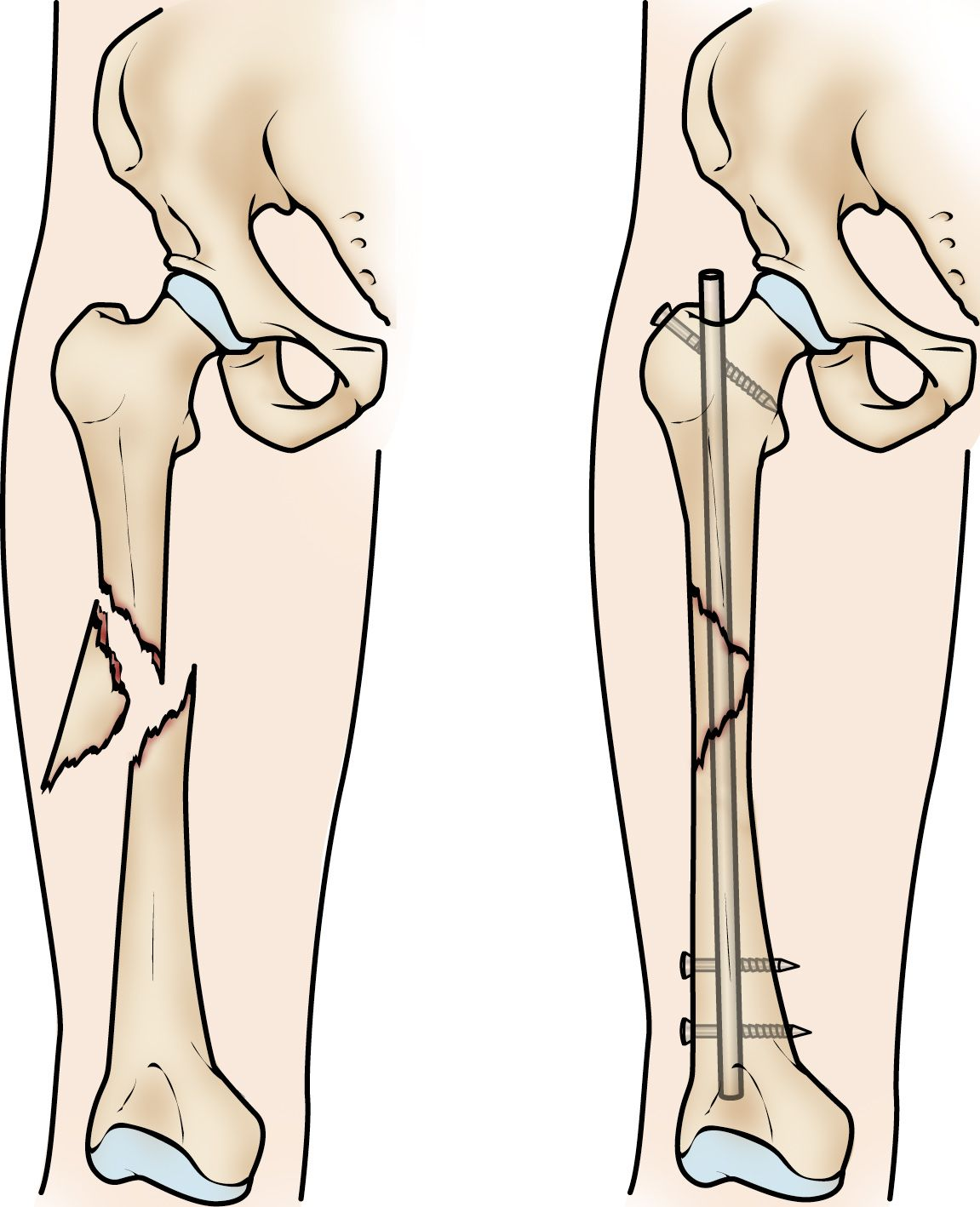Femur Shaft Fractures Broken Thighbone Orthoinfo Aaos