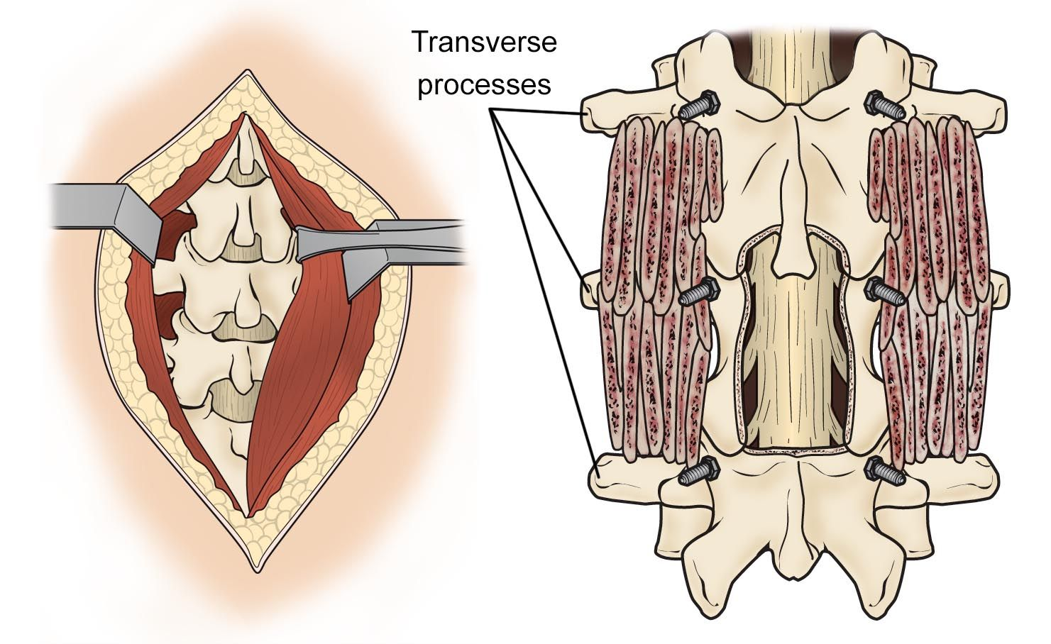 lumbar spine decompression and bone graft placement