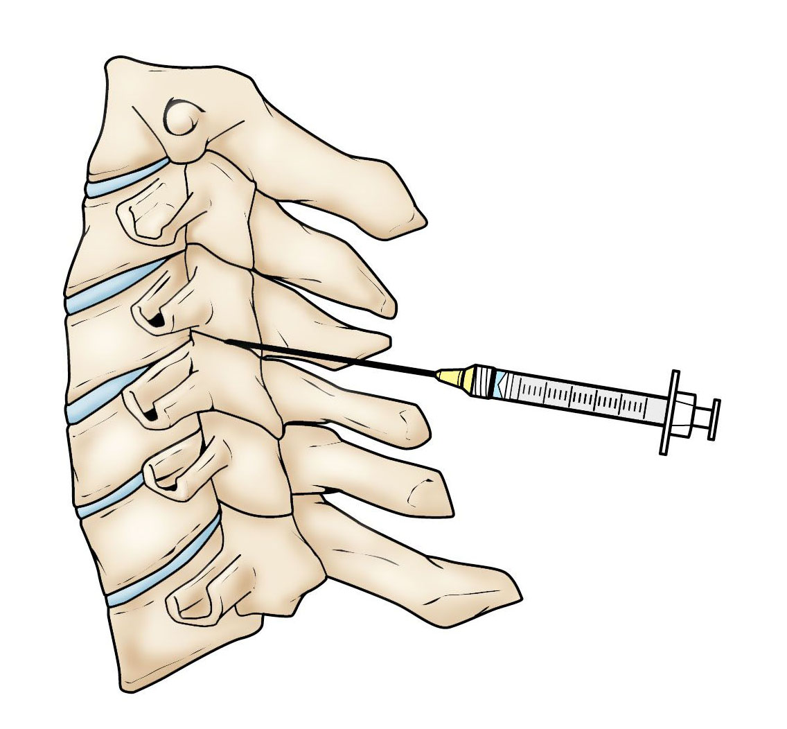 injection in the cervical spine.