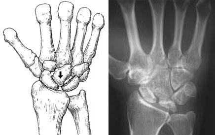 Kienböck's disease stage 3