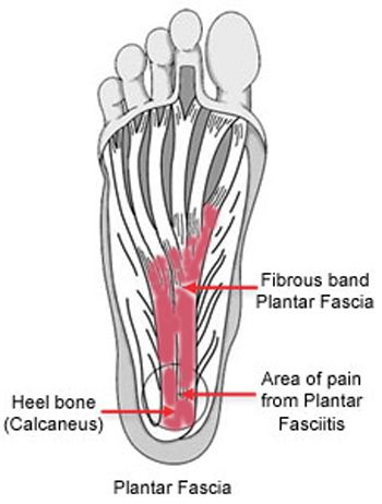 Plantar Fasciitis And Bone Spurs Orthoinfo Aaos