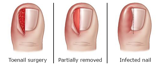 Treatment of ingrown toenail