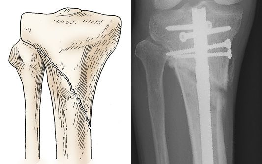 Internal fixation of proximal tibia fracture