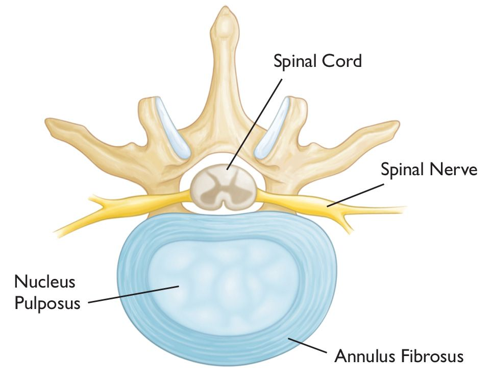 Herniated Disk in the Lower Back - OrthoInfo - AAOS