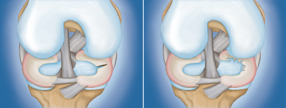 Common meniscus tears