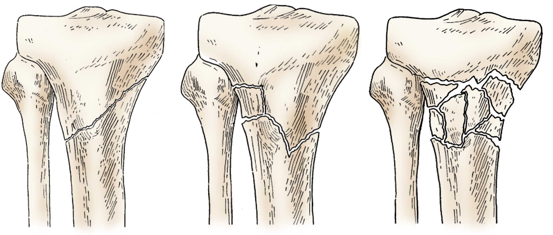 Fractures Of The Proximal Tibia Shinbone Orthoinfo Aaos
