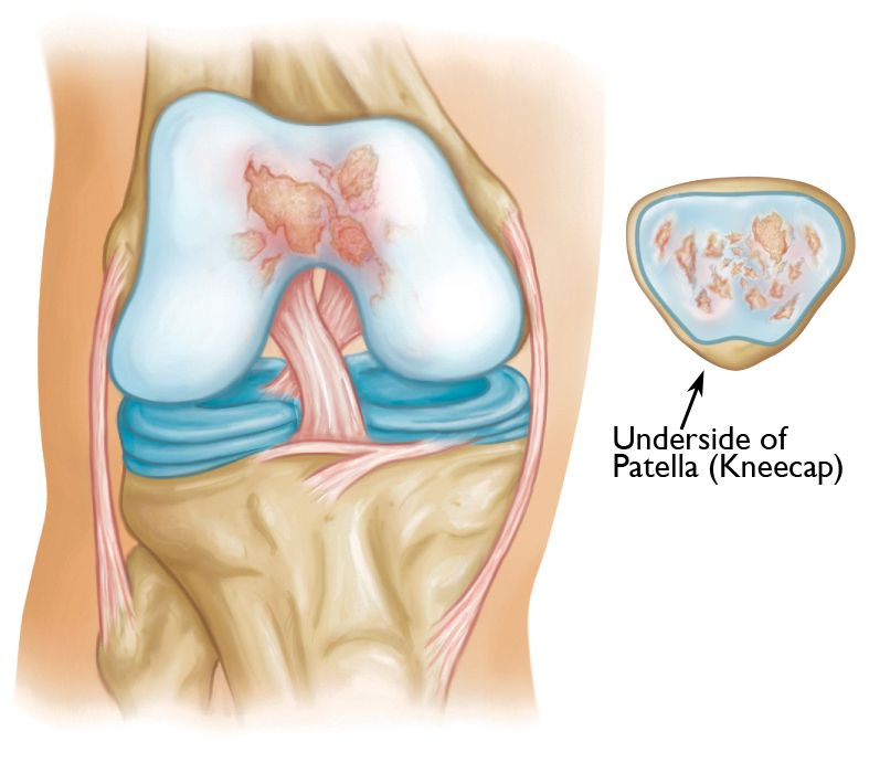 Osteoarthritis in the patellofemoral compartment of the knee