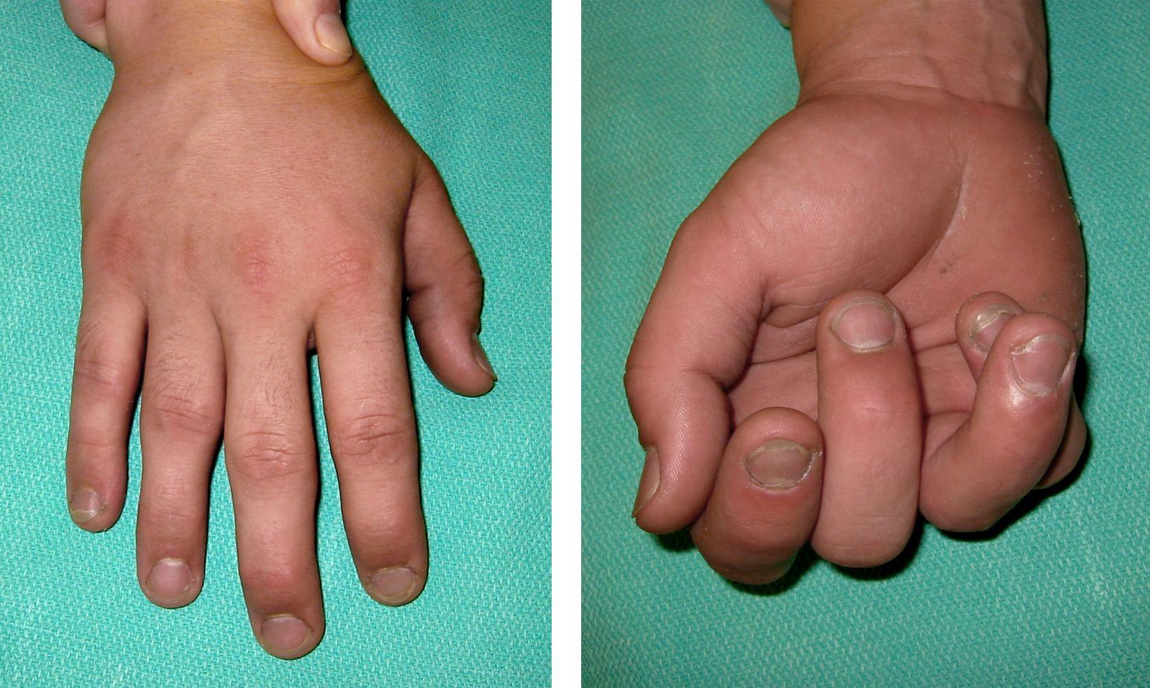 Fractured finger