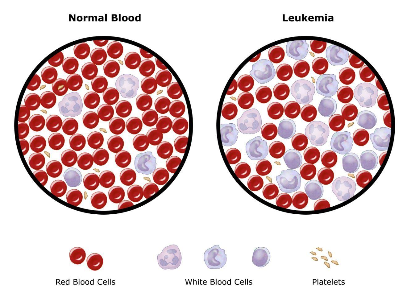 penyebab leukimia