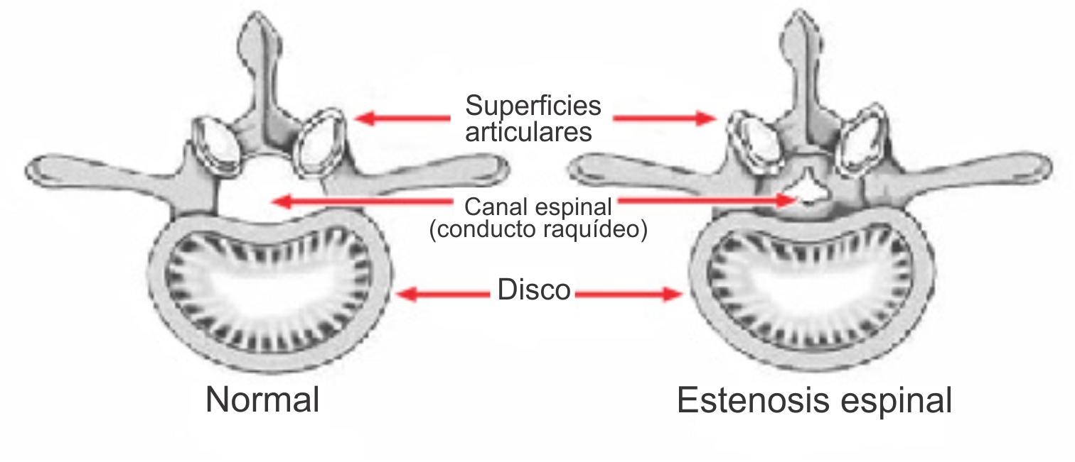 Estenosis de la columna lumbar (Lumbar Spinal Stenosis) - OrthoInfo ...