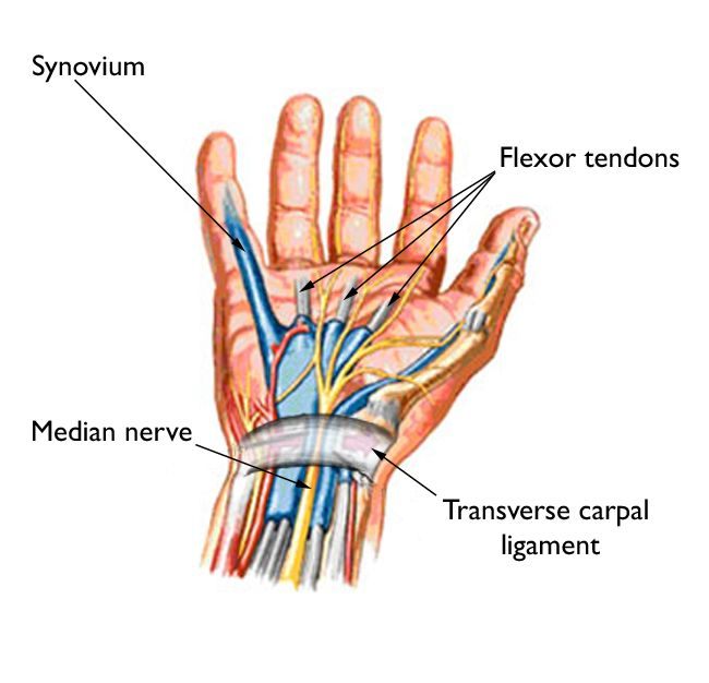 Carpal Tunnel Syndrome Symptoms And Treatment Orthoinfo Aaos