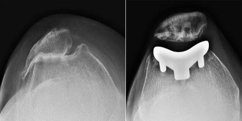 X-rays of arthritic knee and patellofemoral replacement