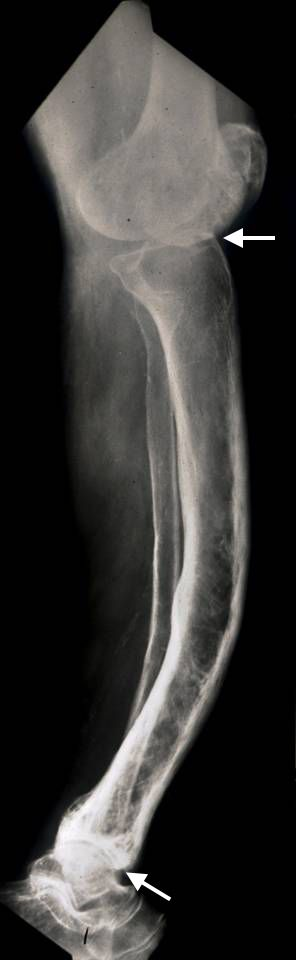 Paget's disease of the tibia