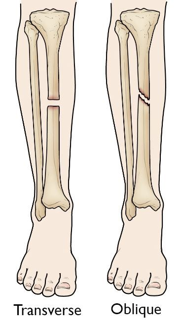 Transverse and oblique tibial shaft fractures
