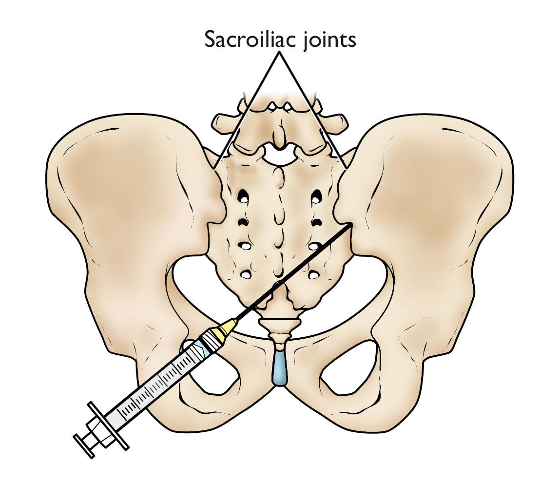 Sacroiliac joint injection in the pelvis