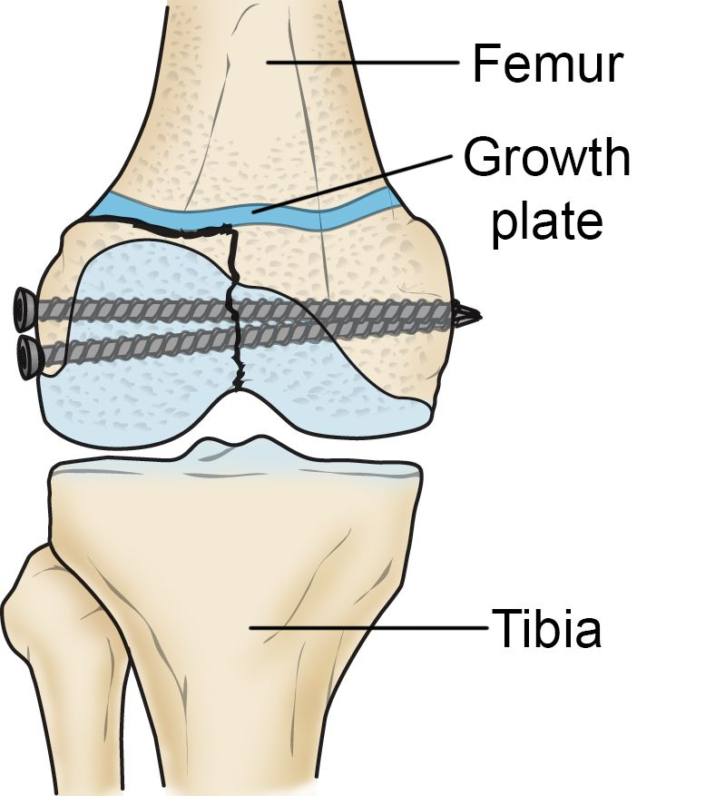 Growth plate fracture treated with internal fixation