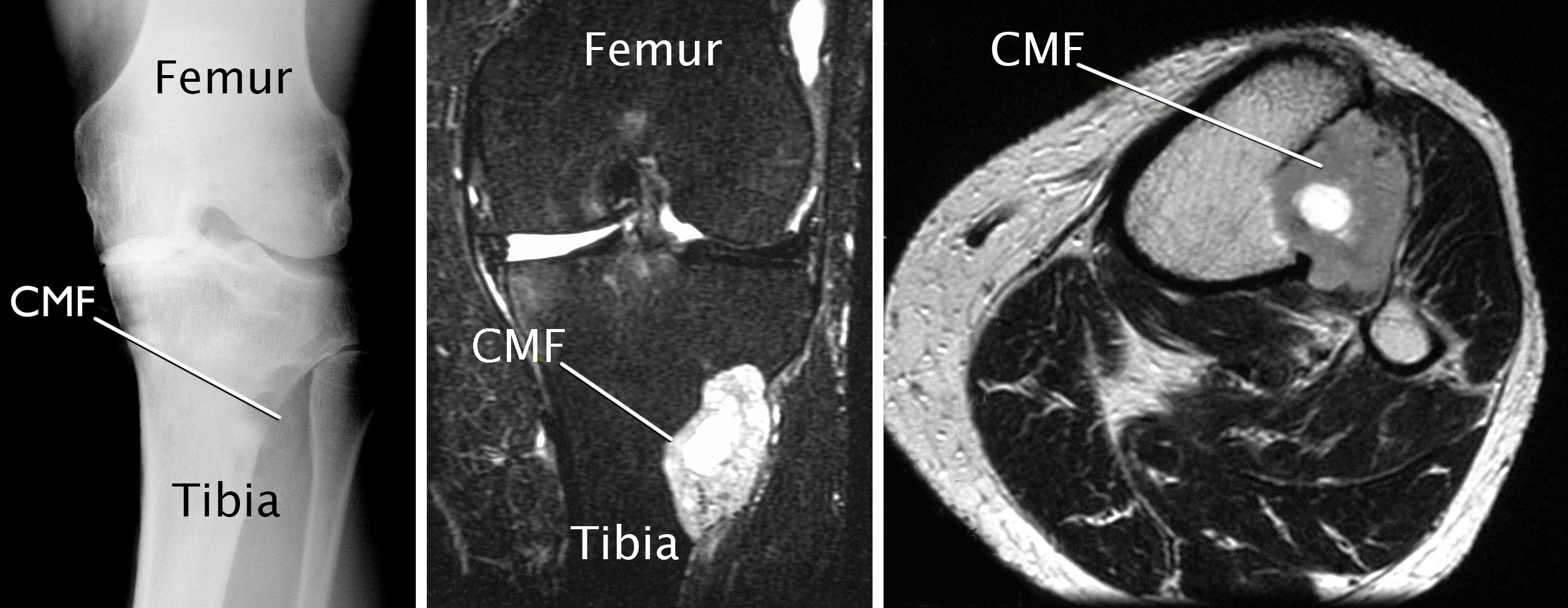 imaging scans of chondromyxoid fibroma