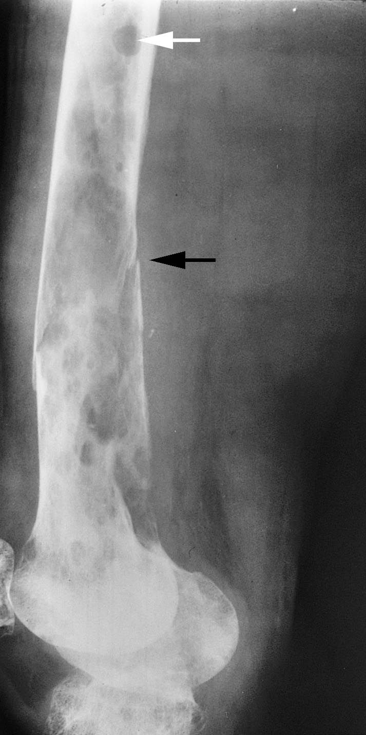 X-rays of multiple myeloma and a pathologic fracture
