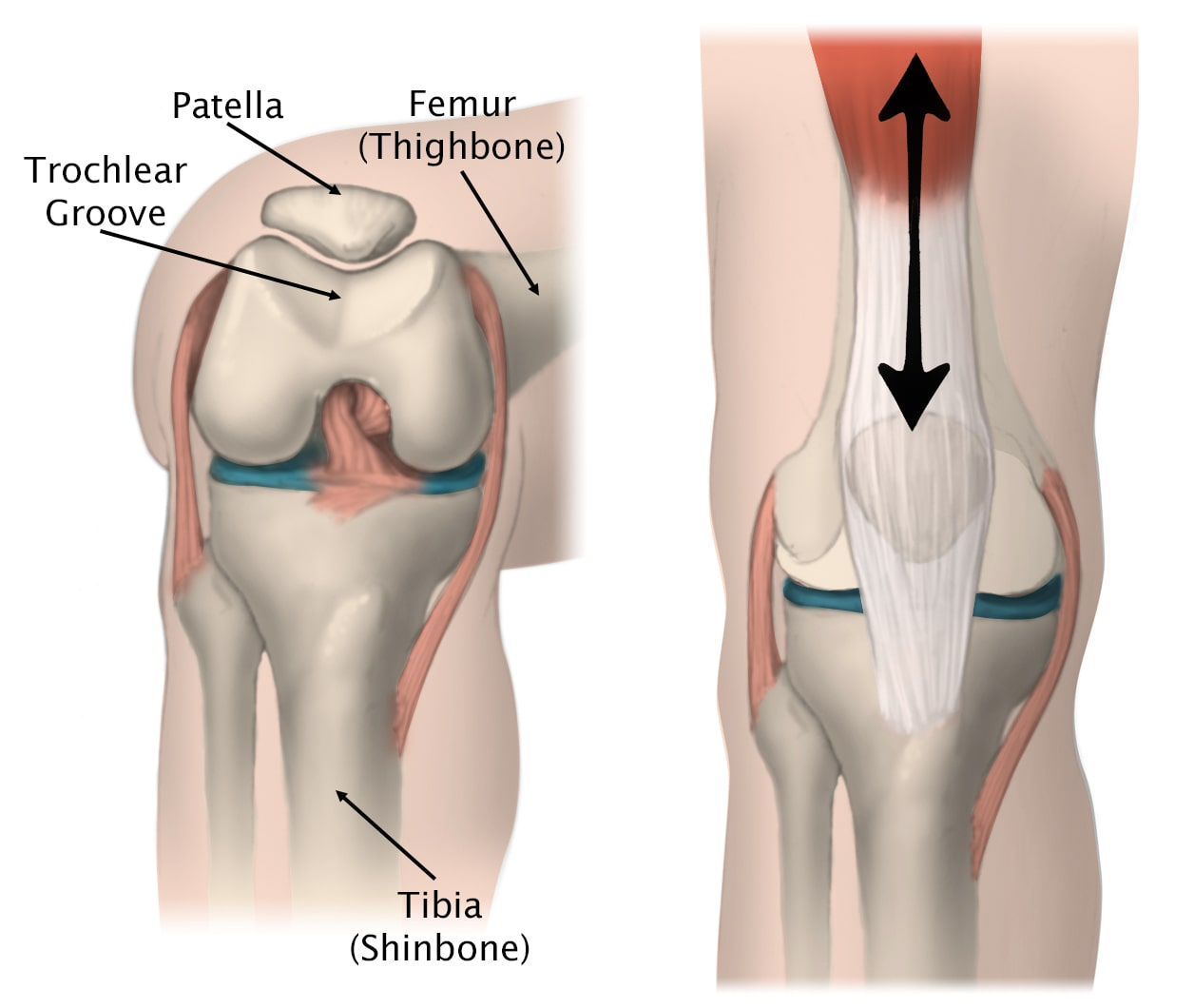 movement of the patella in the trochlear groove