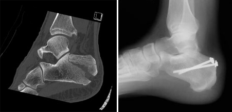 Screw fixation of calcaneus fracture