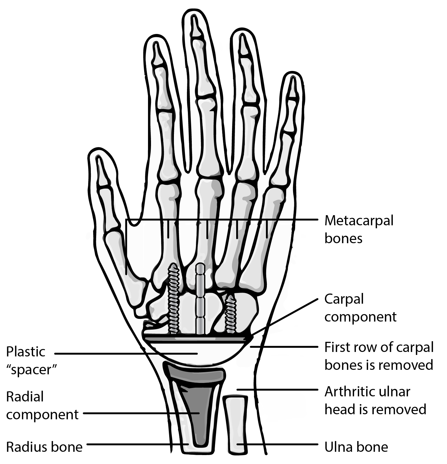 Components of a wrist arthroplasty