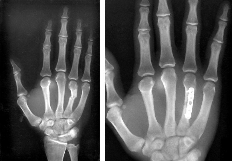 Metacarpal fracture and internal fixation