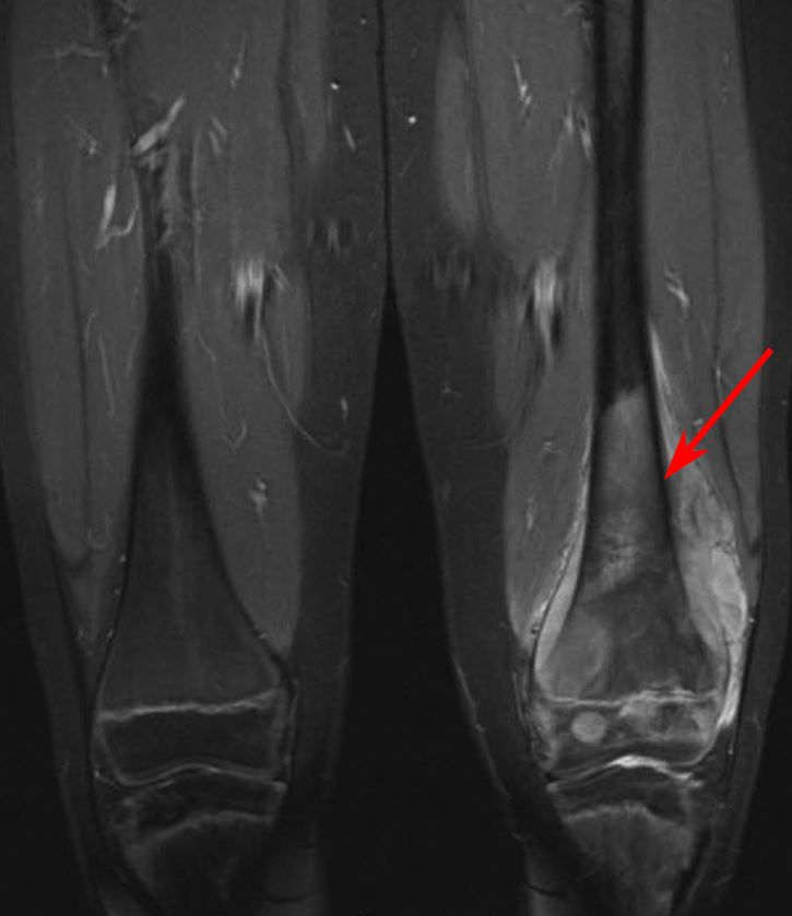MRI scan of osteosarcoma in thighbone