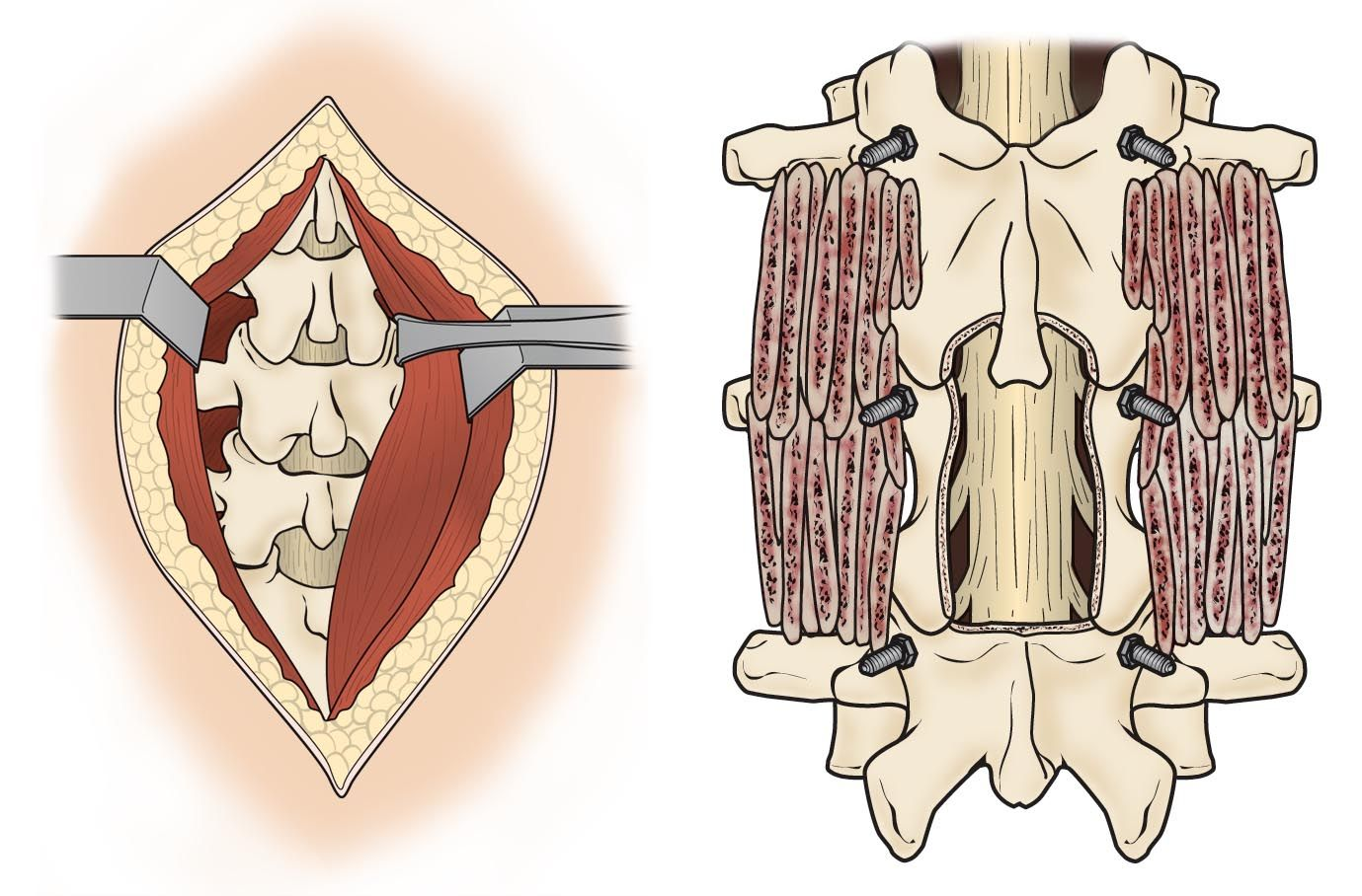 Spine decompression and bone graft