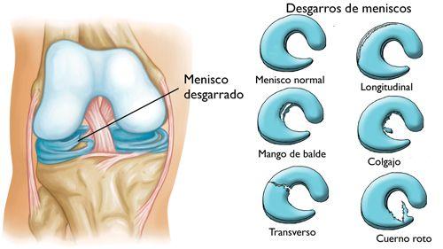 Desgarros De Los Meniscus Meniscus Tears Orthoinfo Aaos