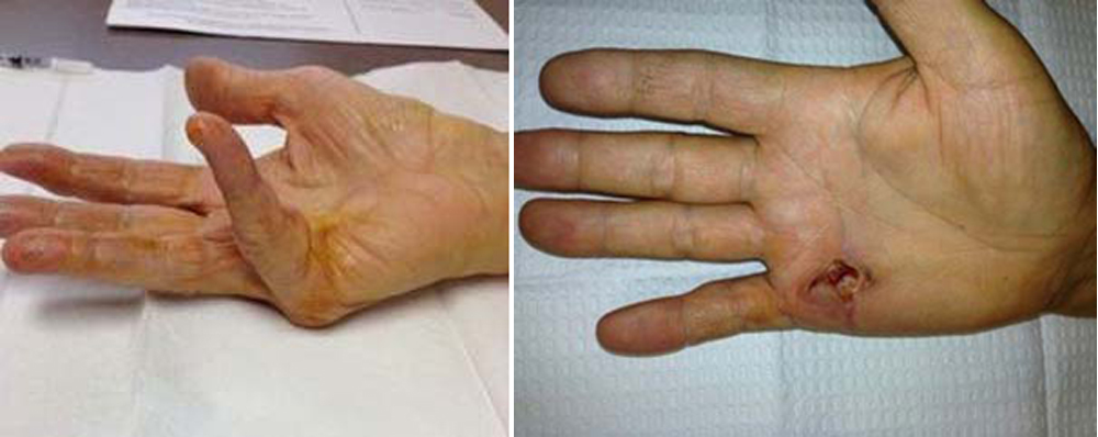 Dupuytren's Disease - Dupuytren's Contracture - OrthoInfo - AAOS